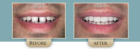 Washington Street Dentistry Image Of Before and After Bonding Before and After 01