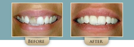 Washington Street Dentistry Image Of Before and After Bonding Before and After 02