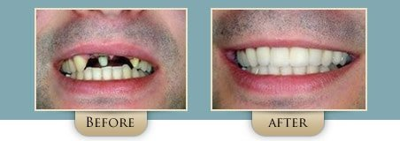 Washington Street Dentistry Image Of Implants