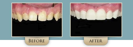 Washington Street Dentistry Image Of Before and After Veneers Before and After