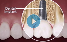Dental Implants Indianapolis - Are You a Candidate?