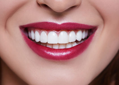 Dr. Matthew Church Providing Cosmetic Dentistry in Indianapolis