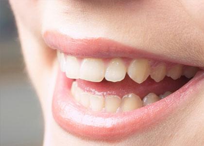 Dr. Matthew Church Providing Common Cosmetic Dentistry