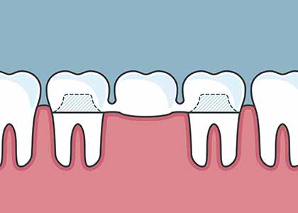 What to expect before, during, and after dental bridge treatment