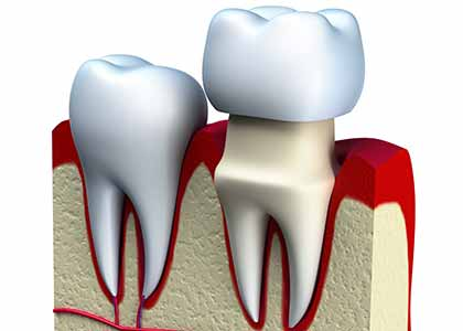 dental procedure in Indianapolis, IN uses dental crowns