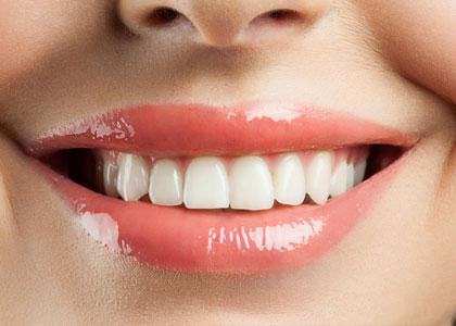 Dr. Matthew Church Providing dental veneers to fix smiles