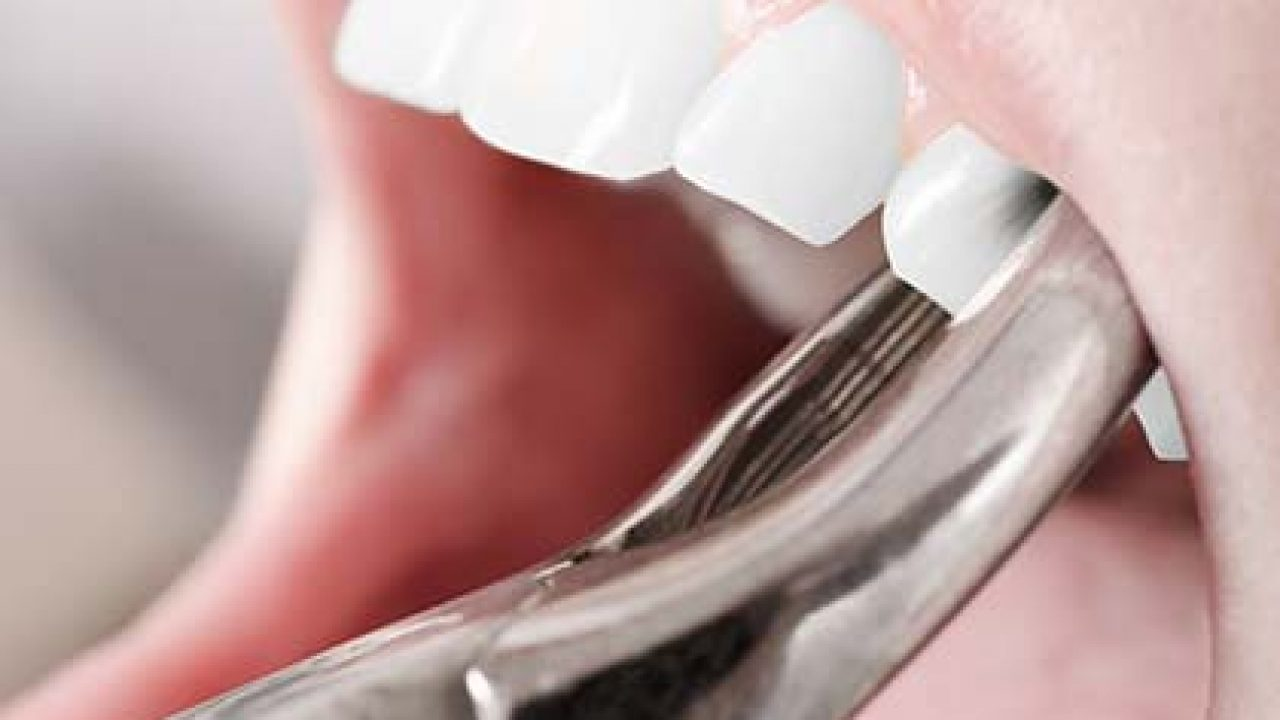 Indianapolis Dental Extraction Tooth Extraction Indianapolis Wisdom Teeth Removal Indianapolis