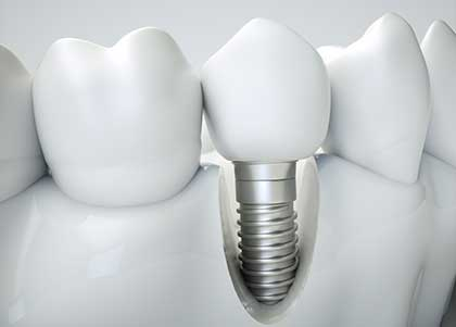 Oral surgeons from Indianapolis, IN and beyond view implants as the ideal tooth replacement