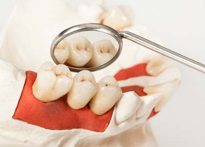 Dr. Dr. Church describe about the gum disease and systemic health, Washington Street Dentistry