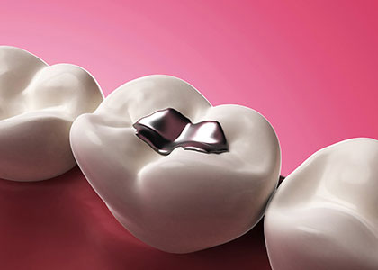 Dr. Matthew Church Providing restoration with tooth colored fillings