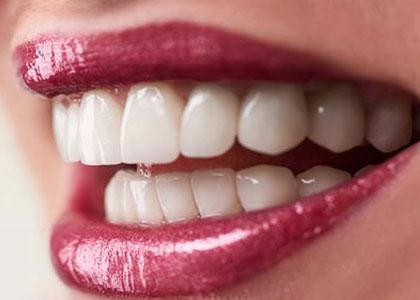 Dr. Matthew Church explains the procedure for dental veneers