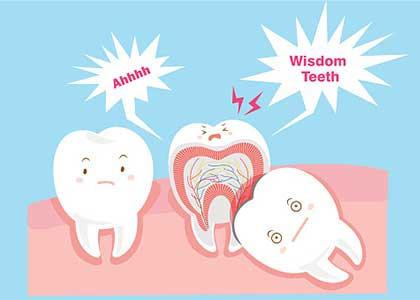 Dr. Matthew Church explains when wisdom tooth extraction is needed