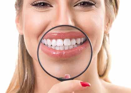 Teeth whitening rejuvenates the entire face