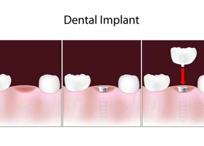 Dr. Matthew Church is a dentist in the Indianapolis, Indiana community who can explain to patients the advantages of placing dental implants and what is involved in the procedure.