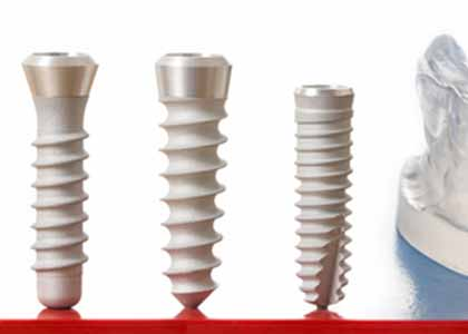 Dental Implants Costs and Reviews in Indianapolis - Dr. Church and our staff invite you to read the reviews and testimonials from our patients.