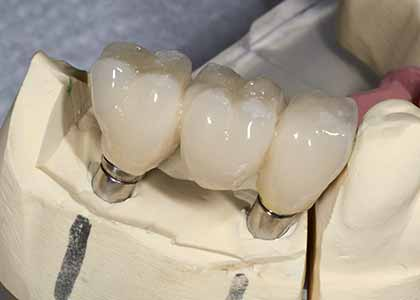 understand the difference between dental implants and bridges