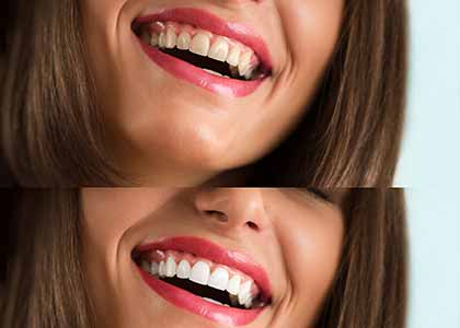 Indianapolis offers professional teeth whitening