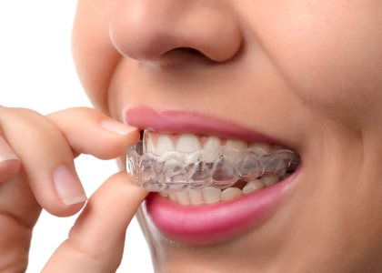 Best Invisalign braces from dentist in Indianapolis