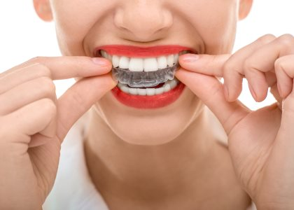 Invisalign Treatment for All Ages from dentist in indianapolis IN