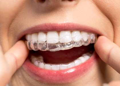 Braces from Invisalign-certified dentist