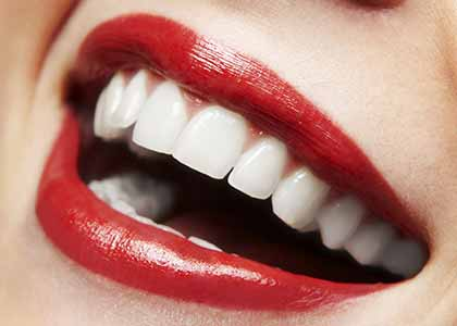 Whitening cost and earn rave reviews about your smile