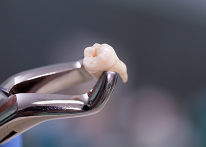 The purpose of wisdom tooth extraction in Indianapolis, IN