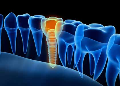 Dr. Matthew Church and his staff to discuss the advantages of replacing missing teeth with dental implants.
