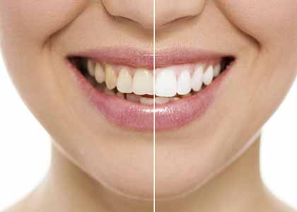 tooth stains to whiten your Indianapolis smile brings a host of benefits