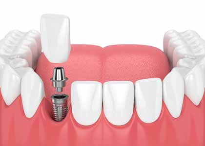 Dr. Matthew Church at Washington Street Dentistry has extensive training and experience in dental implant surgery.