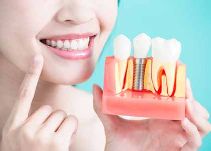 Dr. Matthew Church of Indianapolis, IN is the lead dentist at Washington Street Dentistry and sees patients routinely who are seeking tooth restoration options.