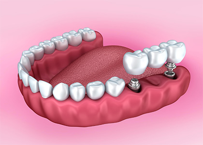 Get Your Smile Back on Track With Dental Crowns in Indianapolis area