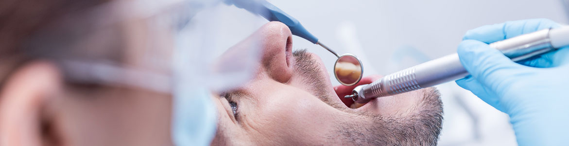 Extractions and oral Surgery