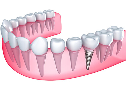 Visit the Best Dentist for Dental Implant Services in the Indianapolis, IN Area at Washington Street Dentistry